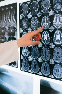 בדיקת MRI פרטית