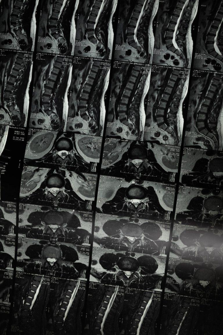 סרטן בגב