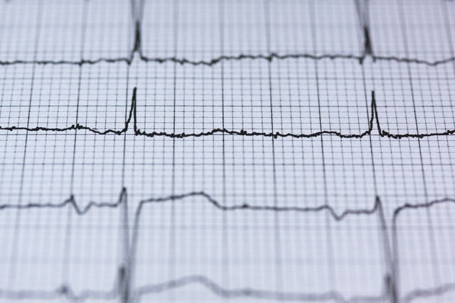 התקף לב תאונת עבודה