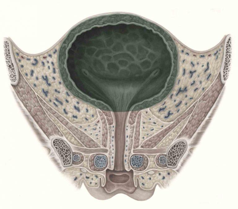 סרטן שלפוחית השתן