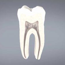 רשלנות רפואית שיניים